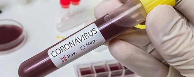 Scientists suggest to infect people with coronavirus on purpose to mitigate its impact